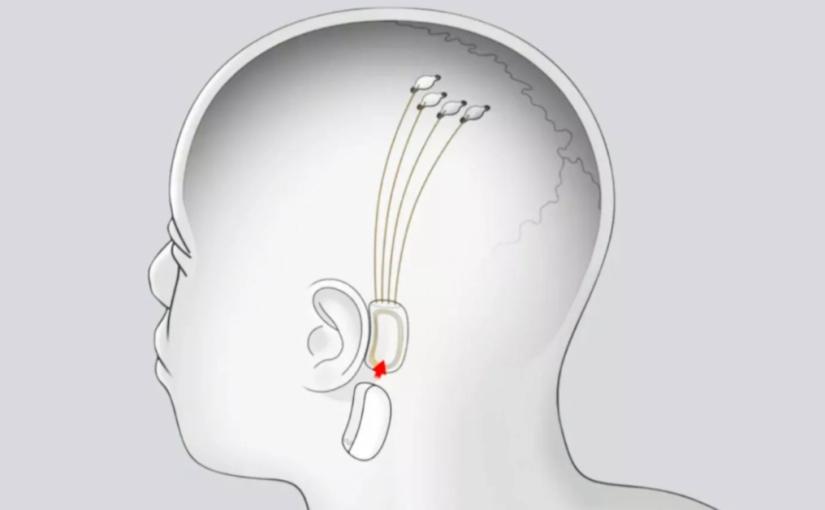 Neurotecnología, Neuralink